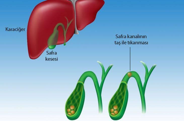 Safra kanalı taşı hastalığı koledokolitiazis belirtileri ve tedavisi