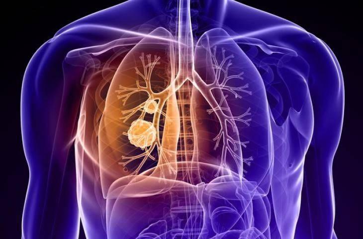 Sigara dışı akciğer kanseri nedenleri