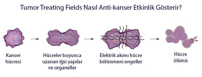 TTF düşük yoğunluklu alternatif elektriksel akım tümörlere etki mekanizması