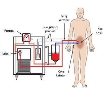 Tekrarlayan yumurtalık (over) kanserinde sıcak kemoterapi (hipertermik kemoterapi) ile birlikte ameliyat