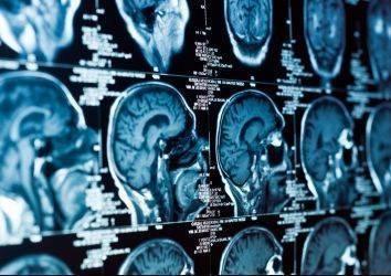 Uzman radyolog tarafından verilen ikinci görüşün baş-boyun kanserlerinin tedavisi ve evrelemesine etkisi nedir?