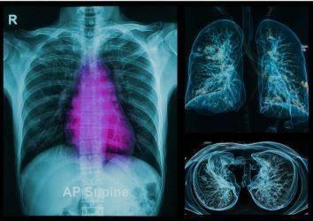 Yeni bir organ bulundu: İnterstisyum, ama bu tahmin ettiğiniz şey olmayabilir