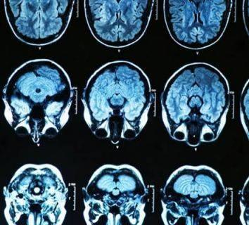 Yeni teşhis edilmiş glioblastomda bevasizumab radyoterapi ve temozolomid ile birlikte verildiğinde etkili olur mu?