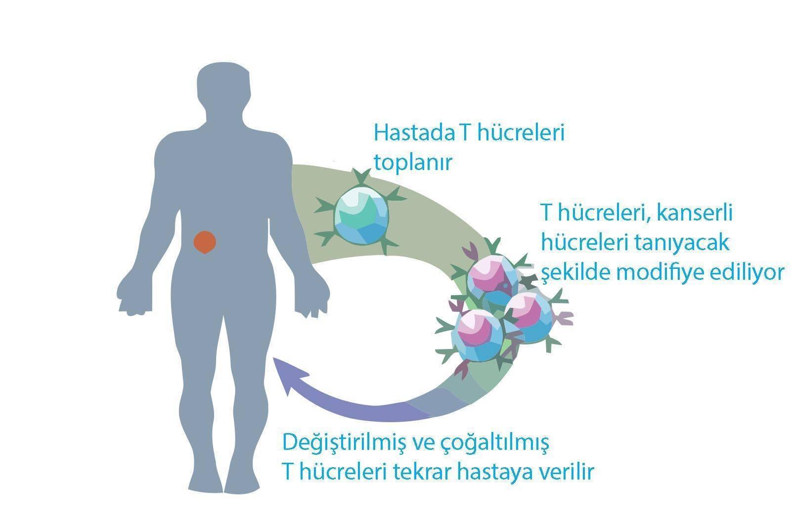 adoptiv t hucre tedavisi yumurtalik kanseri losemiler