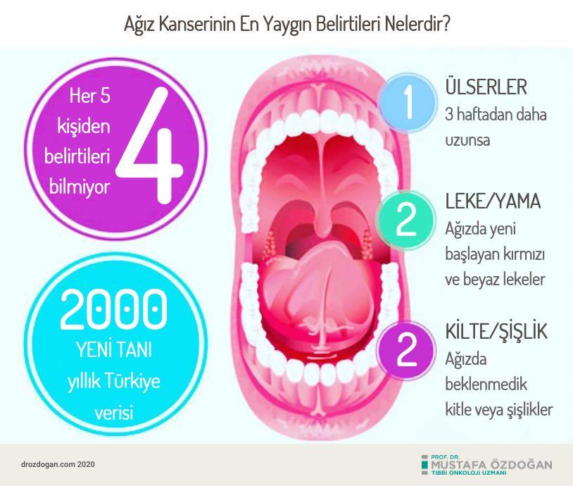 agiz oral kanseri belirtileri nelerdir