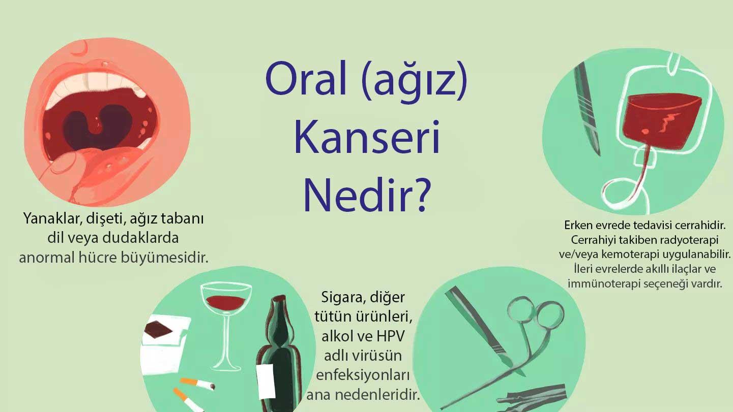 Ağız oral kanseri nedir belirtileri nedenleri tedavisi