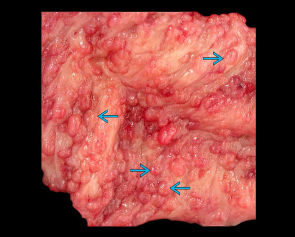Ailesel adenomatöz polipozis rezekte bir kolonun iç yüzünün makroskobik görüntüsü