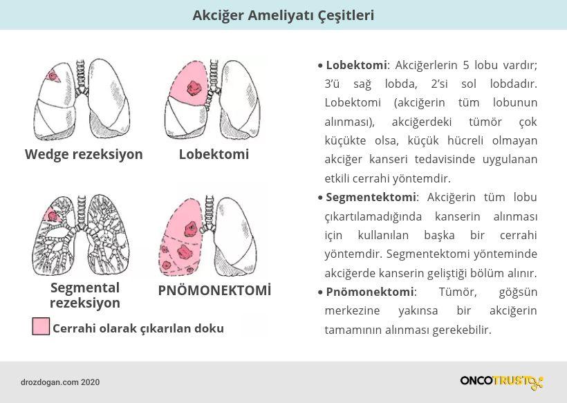akciger ameliyati cesitleri pnomonektomi segmentektomi lobektomi