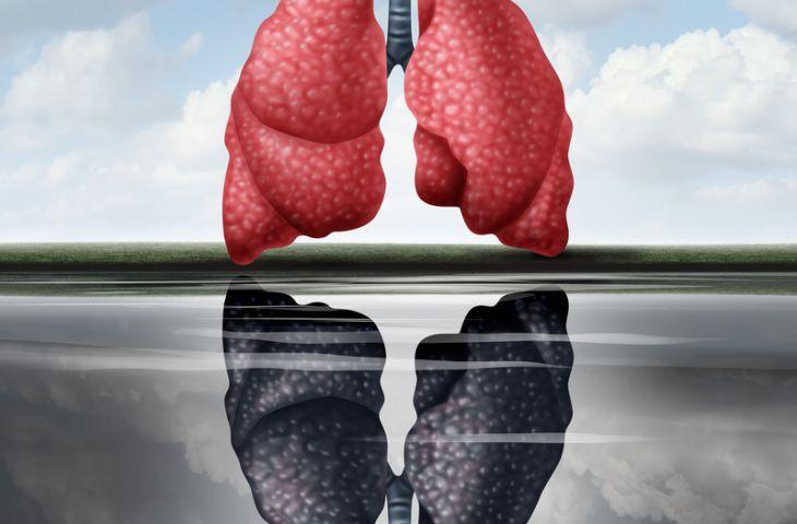 Akciğer kanseri taramasının yaşam kaybını belirgin bir şekilde azalttığı gösterildi