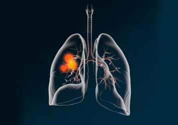 Akciğer kanseri ameliyatında lenf nodu diseksiyonunun kapsamlı yapılmasının önemi