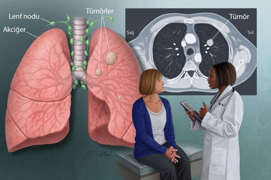 akciğer kanseri evreleri