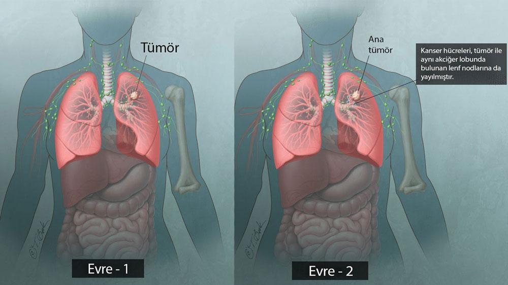 akciğer kanseri evreleri erken 1 2