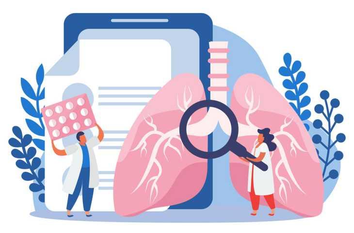 Akciğer kanseri için erken tanı testi, yaşam kaybını dörtte bir oranında azaltabilir