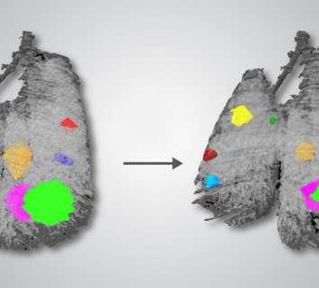 Akciğer kanserinde MET mutasyonuna özgü ilk tedavi FDA onayı aldı: Capmatinib