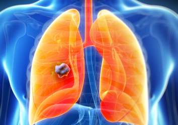 Akciğer nodülü nedir, kanser midir, tedavisi nasıldır?