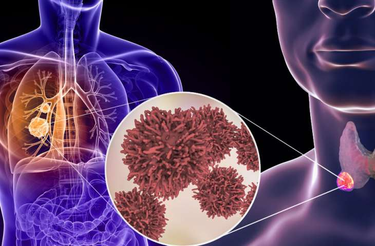 Akciğer ve tiroid kanserlerinde görülebilen RET mutasyonuna yönelik İLK TEDAVİ FDA onayı aldı: Selpercatinib