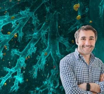 Ali Ertürk ve ekibinin yapay zeka ile tüm vücutta kanser metastazı ve ilaç hedeflerini açığa çıkaran çalışması