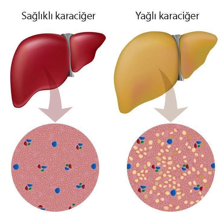 alkole bağlı olmayan karaciğer yağlanması sağlıklı ve yağlı karaciğer farkları