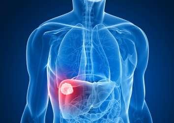 Alkolsüz yağlı karaciğere bağlı karaciğer kanserinin özellikleri