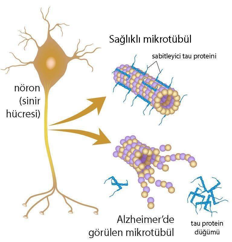 alzheimer tau proteini nedir mutasyon kanser riski