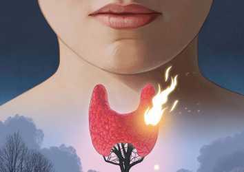 Anaplastik Tiroid Kanseri için Lenvatinib artı Pembrolizumab ile Etkileyici Etkinlik