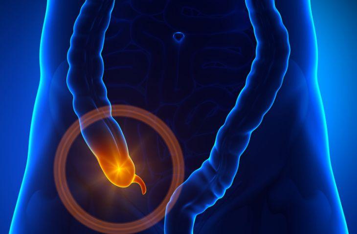 Apendiks kanseri nedir? Belirtileri ve tedavisi