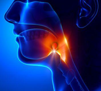 Bademcikte kanser nasıl oluşur? Bademcik (tonsil) kanseri belirtileri ve tedavisi