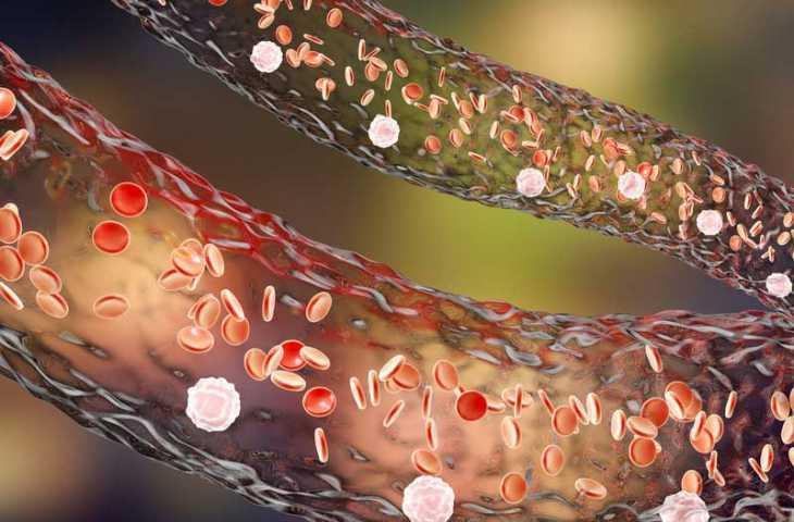 Bevasizumab (Altuzan, Zirabev) nedir, hangi kanserin tedavisinde kullanılır, yan etkileri?