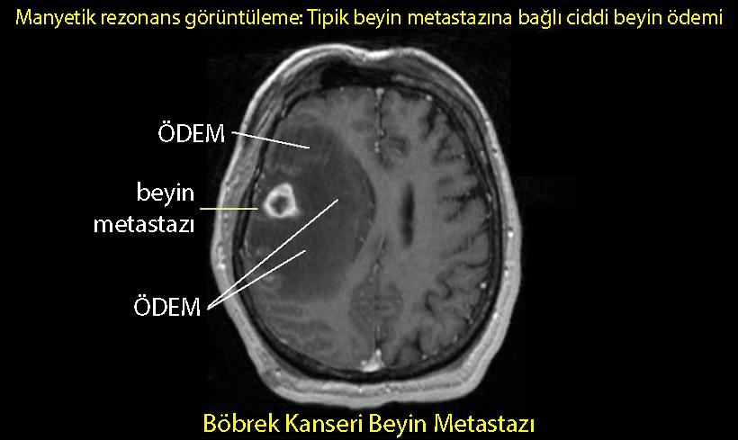 beyin ödemi nedir böbrek kanseri metastazı