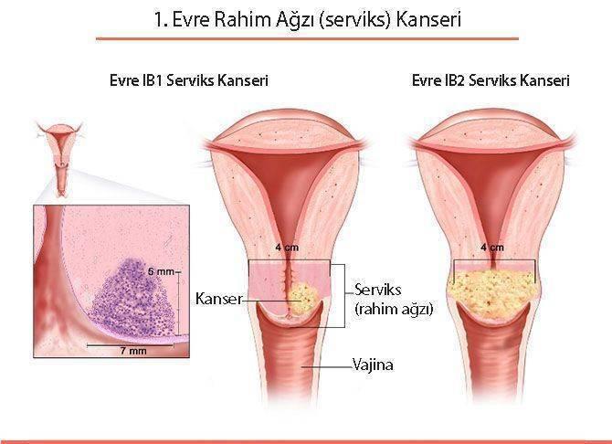 birinci 1 evre rahim ağzı serviks kanseri