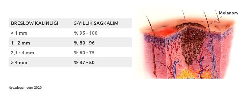 bresloq kalinligi ve sagkalim iliskisi melanom