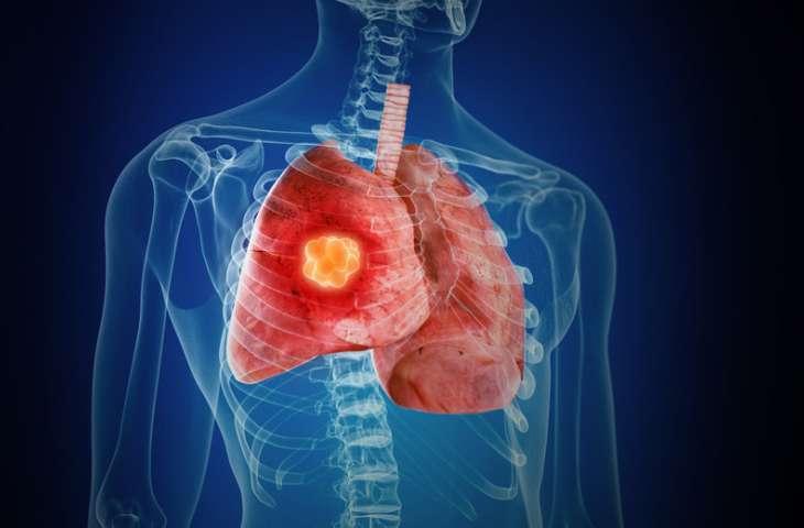 İmmünoterapi kombinasyonu bu kez akciğer kanseri AMELİYAT ÖNCESİ tedavide etkili bulundu