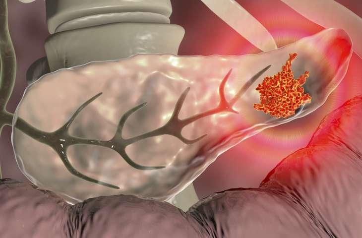 Yeni bir CAR T-hücre immünoterapisi, pankreas kanseri tedavisi için umut vermekte