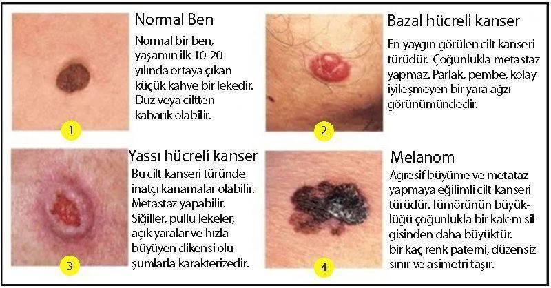 cilt deri kanseri türleri bazal skuamöz yassı hücreli malign melanom ben farkları
