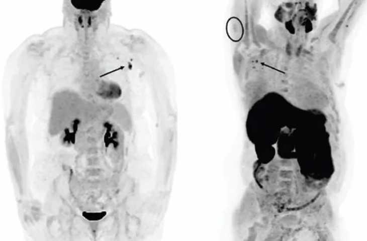 Covid-19 aşısı sonrası PET taramada yanlış pozitif lenf düğümlerine dikkat