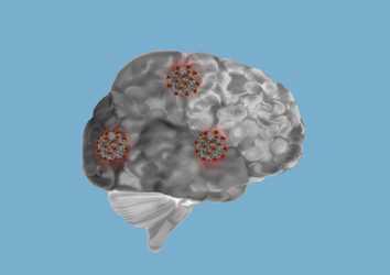 Covid-19 sonrası bilişsel-beyin problemlerine ilişkin yeni veriler