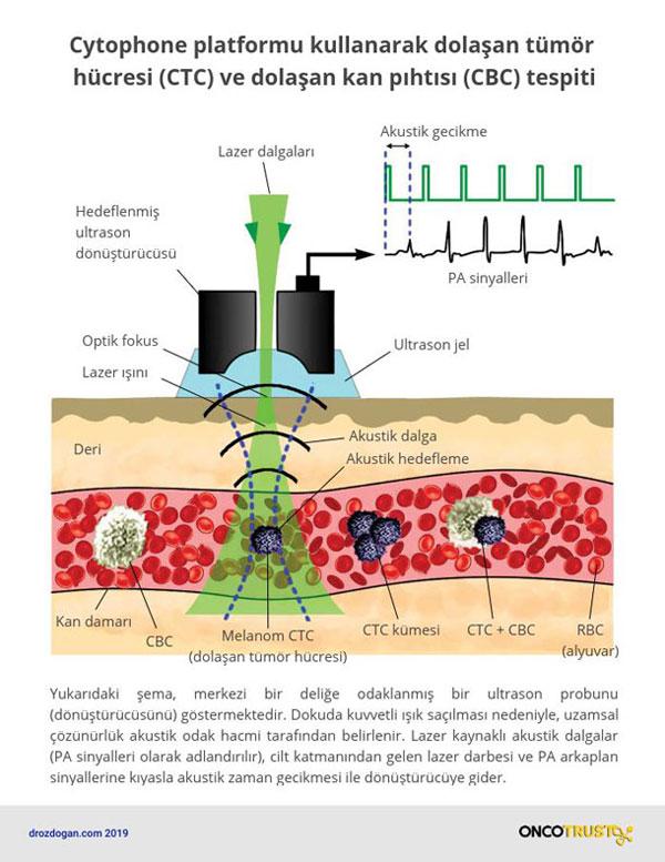 cytophone platformu kullanarak dolasan tumor hucresi ctc ve dolasan kan pihtisi cbc tespiti