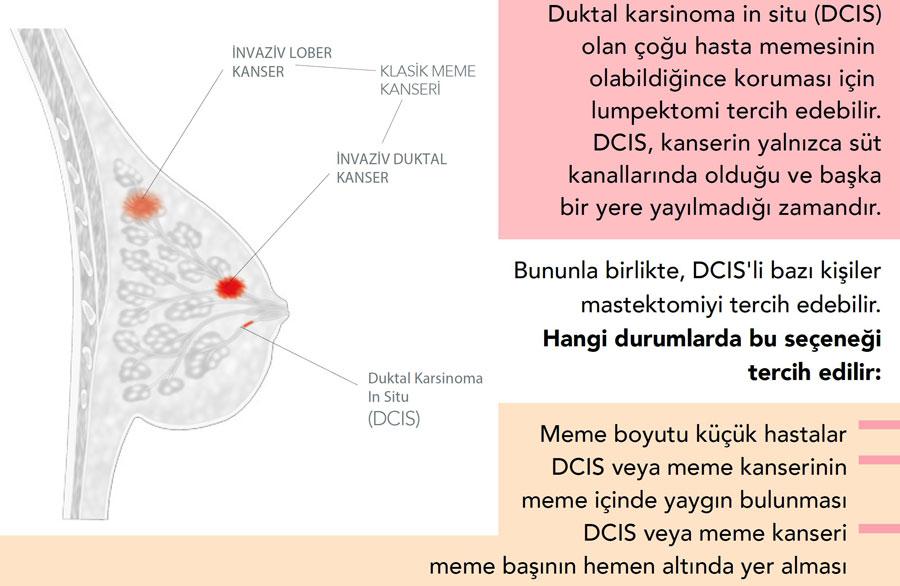 DCIS nedir nasıl tedavi edilir lumpektomi mastektomi