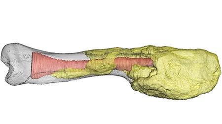 dinozorda teşhis edilen malign bir tümörün ilk örneği