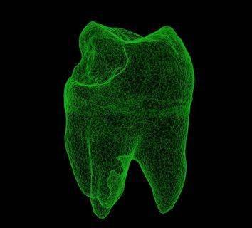 Diş eti - periodontal hastalığı birçok kanser için risk oluşturuyor