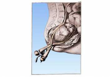 Doğum Forsepsi 1580 – Para ve şöhret arzusunun yaşamla mücadelesi
