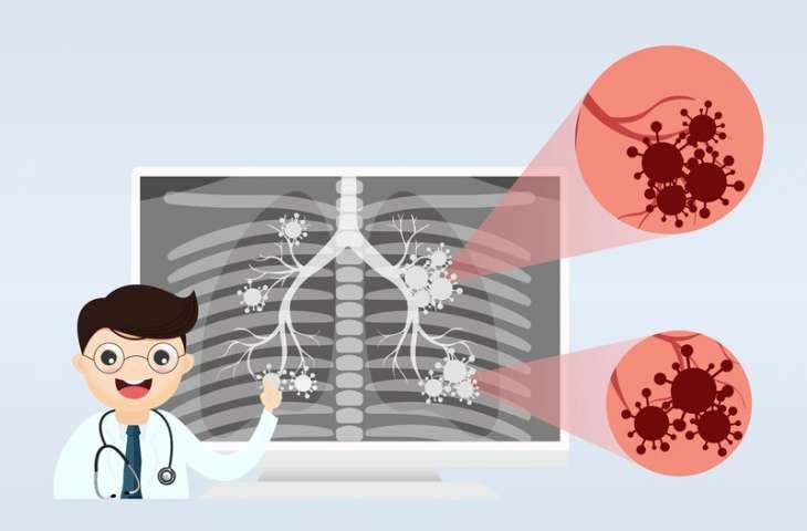 E-sigaralar, nasıl akciğer hastalığı yapıyor?
