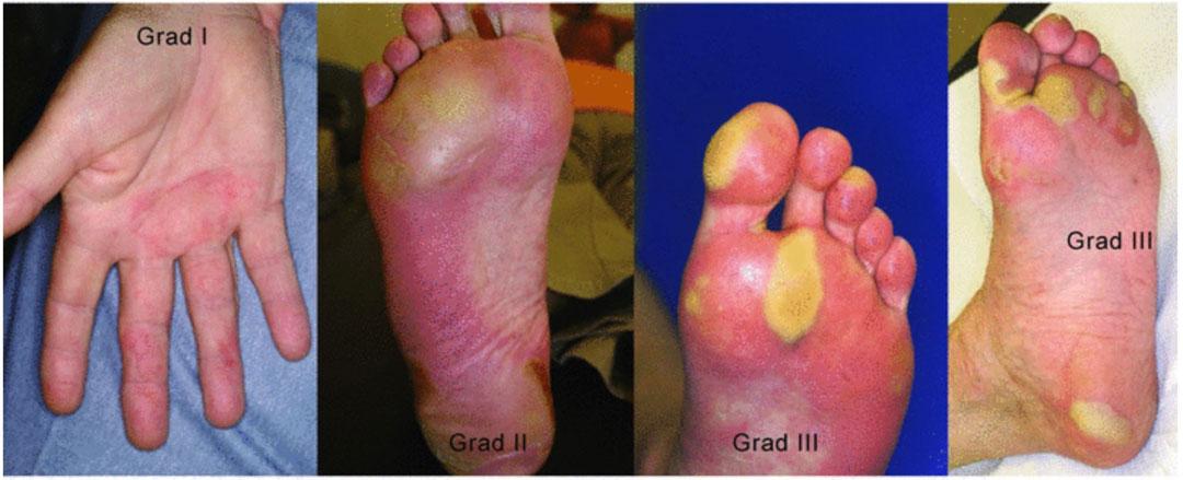 el ayak sendromu dereceleri grad 1 2 3 4