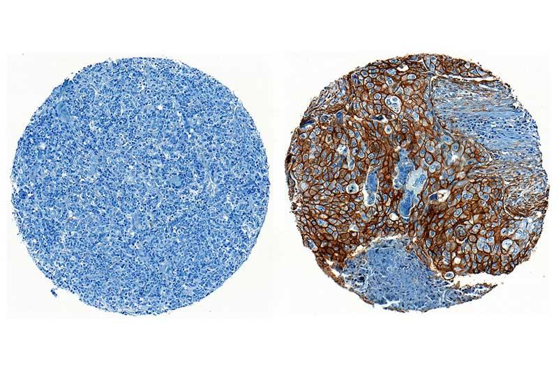 ENPP1 ifadesi için negatif sol ve pozitif sağ boyayan üçlü negatif meme kanseri doku örnekler