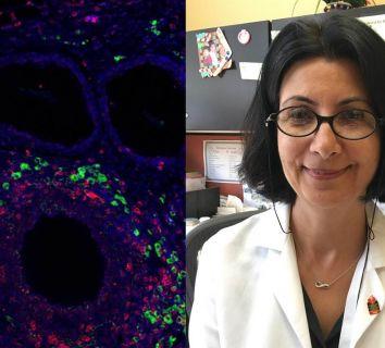 Türk Profesör Esma Yolcu, kanser gelişimini önleme potansiyeline sahip yeni bir immunoterapi molekülü keşfetti
