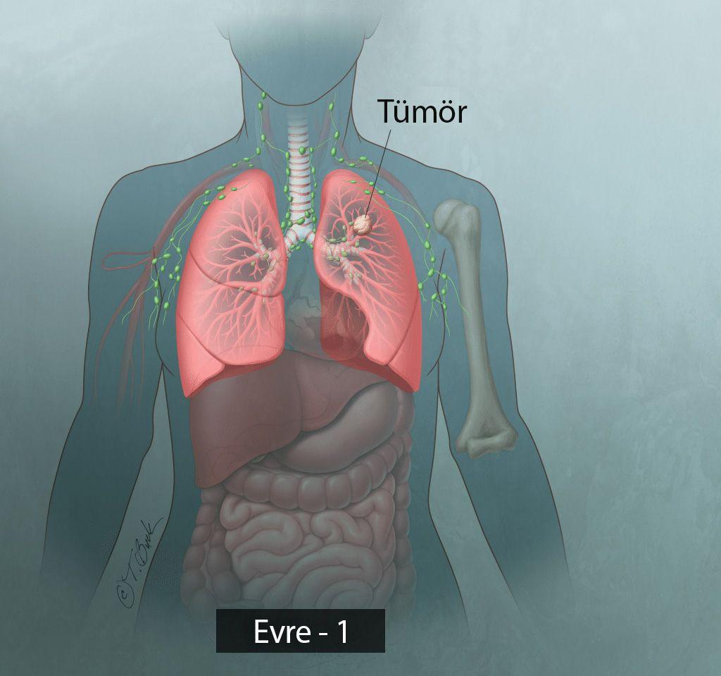 evre 1 küçük hücreli olmayan akciğer kanseri
