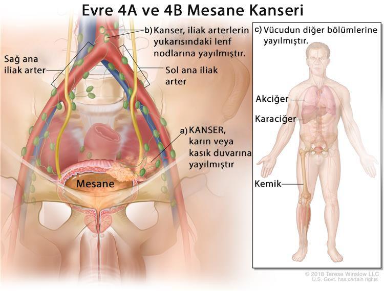 evre 4 metastatik mesane kanseri nedir
