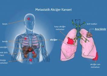4. evre kanser, metastaz ve metastatik nedir, metastaz belirtileri, kanser neden metastaz yapar ?