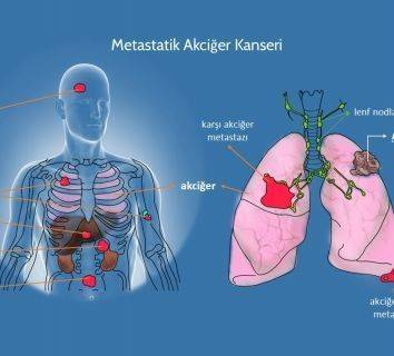 4. evre kanser nedir, metastaz ne demektir, kanser neden metastaz yapar ?