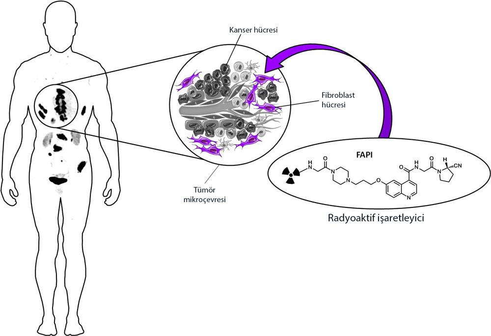 FAPI PET mekanizması nasıldır fibroblast işaretleyici kanser görüntüleme